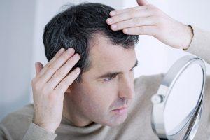 أسباب تساقط الشعر عند الرجال وما يكون له من تأثيرات سلبية على فروة الرأس