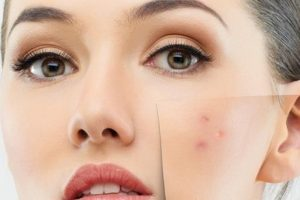 وصفات طبيعية لإزالة آثار حب الشباب من الوجه بسهولة
