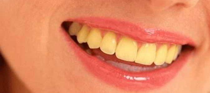 وصفات طبيعية للتخلص من إصفرار الأسنان