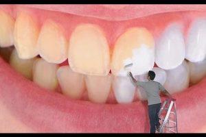 أسهل طرق التخلص من إصفرار الأسنان