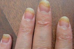 كيفية الوقاية من فطريات الأظافر و علاجها