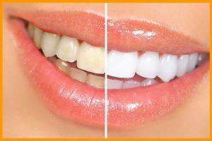 وصفات طبيعية لتبييض الأسنان سريعاً في المنزل