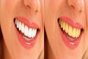 وصفات طبيعية منزلية لتبييض الأسنان.. تعرفي عليها