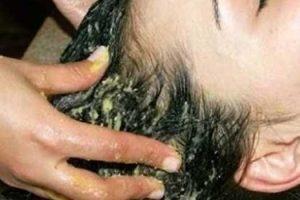 وصفات طبيعية من الترمس لتطويل الشعر