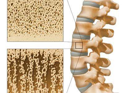 ما هو مرض هشاشة العظام أسباب حدوثه وطرق علاجه طبيعياً في المنزل