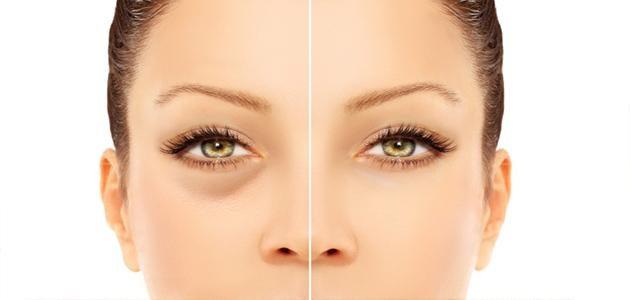 طريقة سهلة لعلاج الانتفاخات المتواجدة حول العين