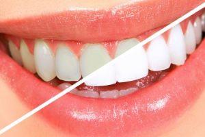 طريقة تبييض الأسنان في دقائق قصيرة وبأقل الإمكانيات في المنزل