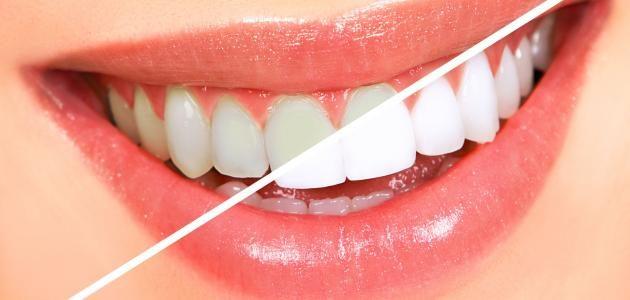 وصفة الكركم للحصول على أسنان ناصعة البيض في وقت قصير