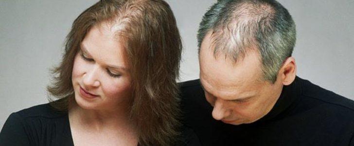 نصائح هامة لإيقاف تساقط الشعر والحصول على شعر صحي