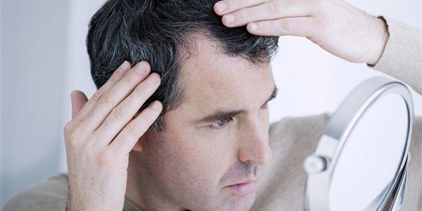 العلاج الأمثل والنهائي لحل مشكلة تساقط الشعر لدى الرجال