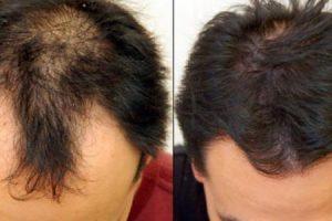 طرق علاج تساقط الشعر للرجال