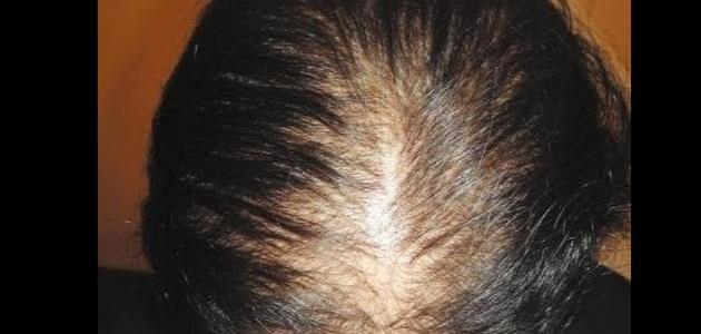 أسهل وأسرع الطرق لتكثيف شعر الرجال والنساء من الأمام