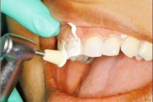 خلطات طبيعية لإزالة ترسبات الأسنان في وقت قصير