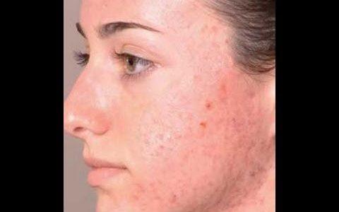 وصفات طبيعية لتهدئة حبوب الوجه