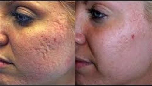 وصفات طبيعية لعلاج حفر الوجه بشكل سريع