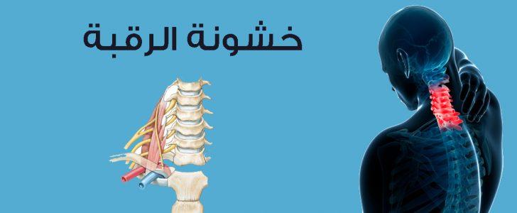 تعرف على أعراض وأسباب خشونة الرقبة والوقاية منها وطرق العلاج