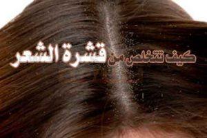 3 طرق سهلة للتخلص من قشرة الرأس نهائيا للرجال والنساء وصفات طبيعية للقضاء على القشرة