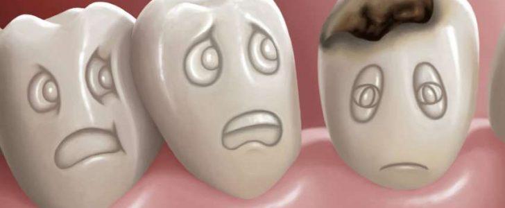 التخلص من تسوس الاسنان طبيعيا بالوصفات المنزلية