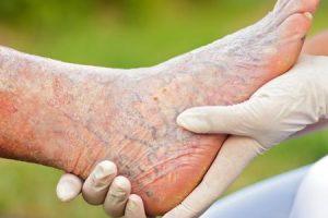 كيفية علاج الدوالى فى الساقين بطرق سهله وبسيطة