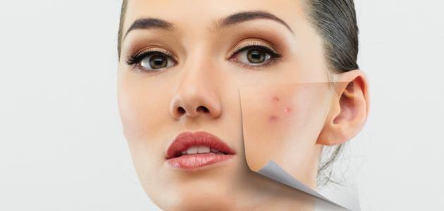 أفضل الماسكات الطبيعية لعلاج حب الشباب وآثاره على الوجه والبشرة بدون مضاعفات