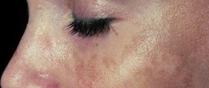 أسباب ظهور الكلف في الوجه