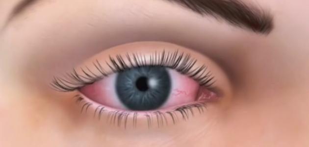 التعامل مع جفاف العين في ال4 مواسم
