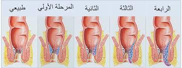 مراحل ظهور مرض البواسير
