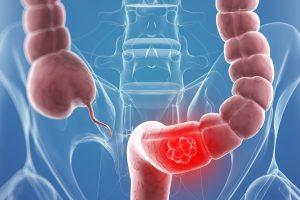 أعراض سرطان القولون وطرق العلاج وكيفية الوقاية من هذا المرض الخطير
