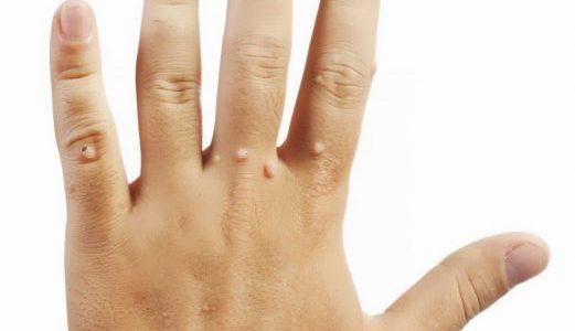 طريقة استخدام الباذنجان فى علاج الثاليل وازالتها من الجلد بصورة فعالة