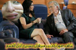 شاهد بالصور.. الفنانة ميرهان حسين تعرض آثار الاعتداء عليها بقسم الهرم