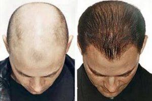 وصفات مدهشة وفعالة فى علاج الصلع وإنبات الشعر بالزيوت والمواد الطبيعية