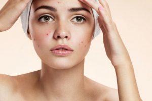 كيفية علاج بثور الوجه طبيعيا بدون مضاعفات
