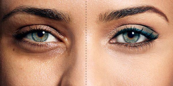 طرق إزالة الهالات السوداء تحت العين والتخلص منها نهائيا بمنتجات طبيعية