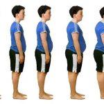 دور الجراحة في عملية علاج السمنة وإنقاص الوزن