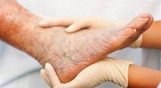 علاج الدوالى : طرق متنوعة لعلاج دوالى الساقين بالحقن والليزر والجوارب الطبية