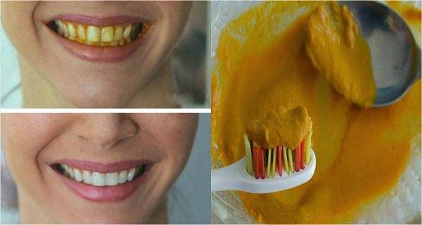 الكركم لتبييض الاسنان