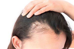 وصفات طبيعية للقضاء على مشكلة الصلع ولعلاج تساقط الشعر