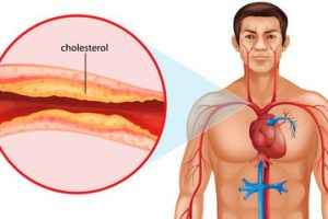 أطعمة غذائية تساعد على تقليل نسبة الكوليسترول في الدم ومعلومات عنه