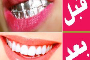 افضل طرق لتبييض الاسنان وعلاج اصفرار الاسنان