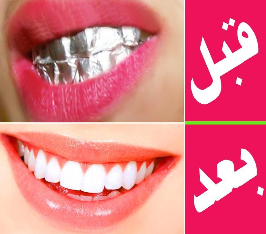 ورق الالومنيوم لتبييض الاسنان