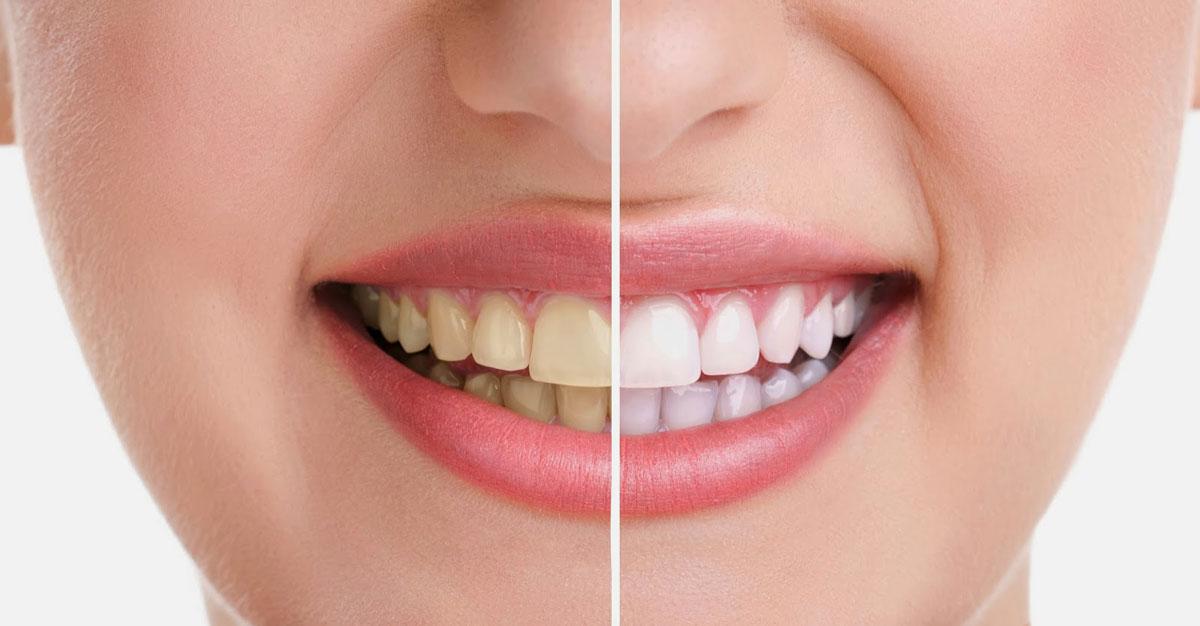 تبييض الاسنان