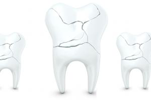 أسباب تكسر الأسنان وطرق علاجها و حمايتها طبيعياً